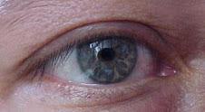 ojo-dr-perdomo-leon